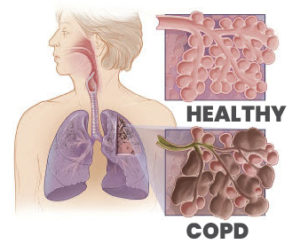 COPD Graphic