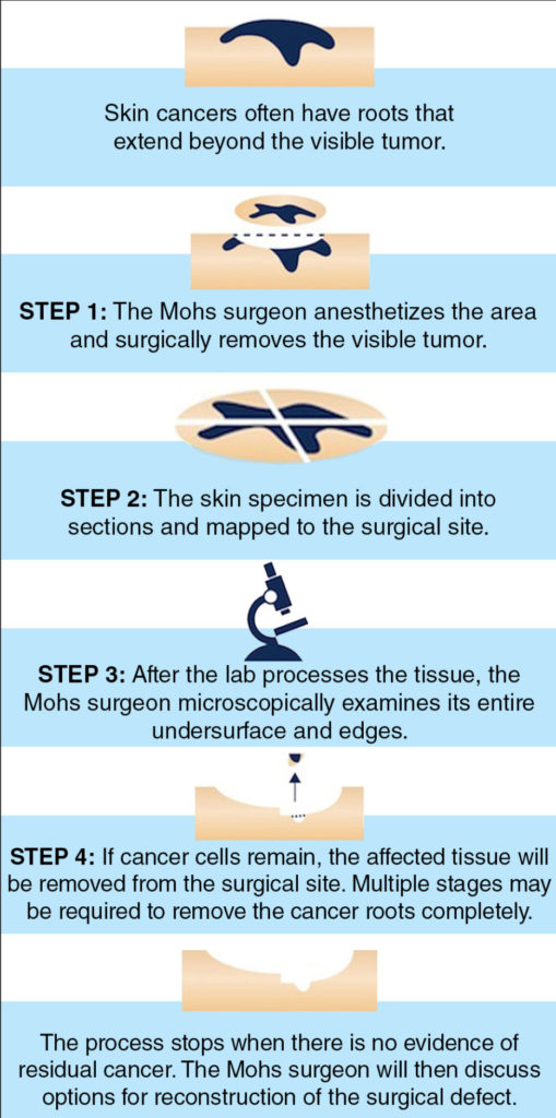 Mohs Micrographic Surgery Steps