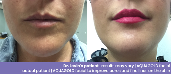 Aquagold Levin Before and After