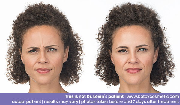 Botox, Fillers, & Kybella | Cosmetic Dermatology | QMG
