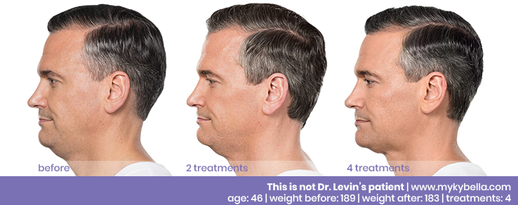 Kybella Before and After Andy