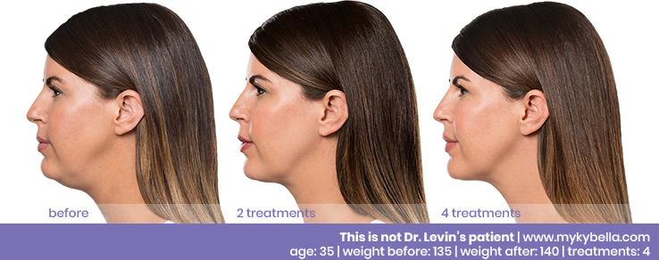 Kybella Before and After Nikki